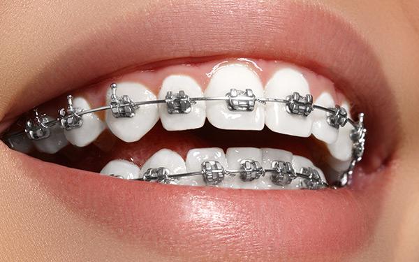 Consigli del dentista