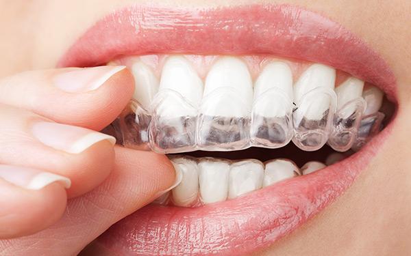 Proteggi i denti mentre dormi